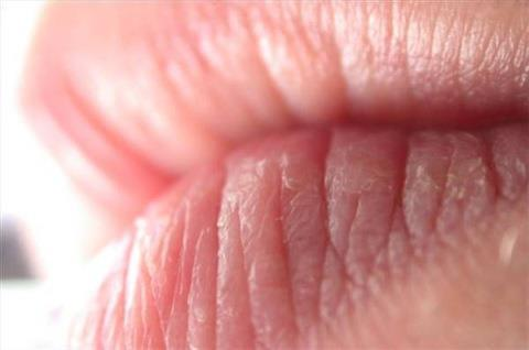 Labbra screpolate: cure e rimedi