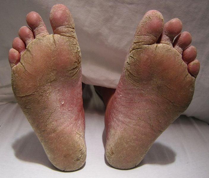 911 da un fungo di piede