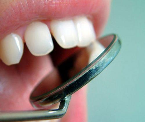 Denti bianchi rimedi fai da te