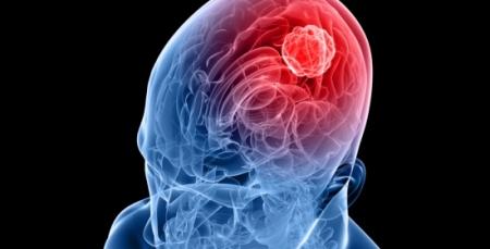 Meningite contagio sintomi e cura