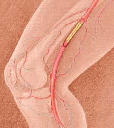 Arteriopatia obliterante periferica