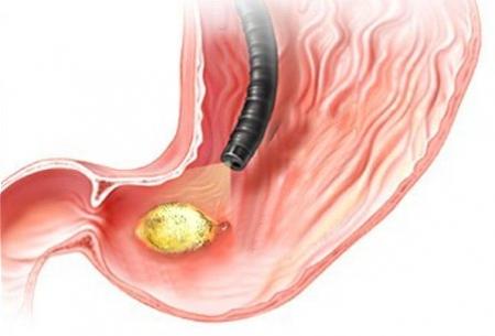 Ulcera peptica: sintomi, cause e cura
