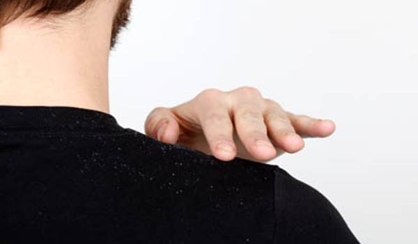 forfora sulle spalle