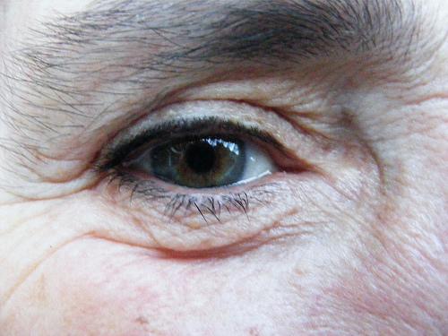 Degenerazione maculare: sintomi e rimedi