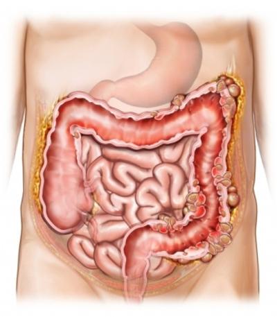 Diverticoli intestinali: sintomi e cura