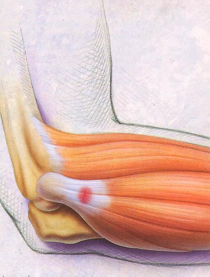infiammazione gomito