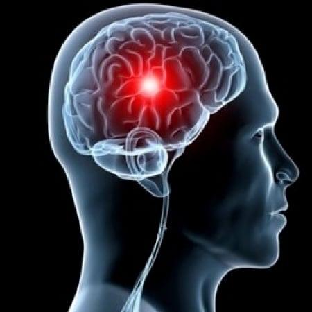 Ictus cerebrale quando come e perchè