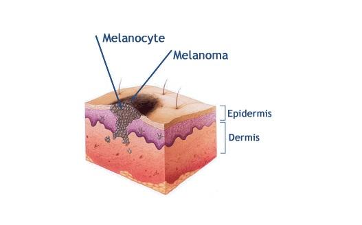 Calcio e vitamina D contro il cancro alla pelle