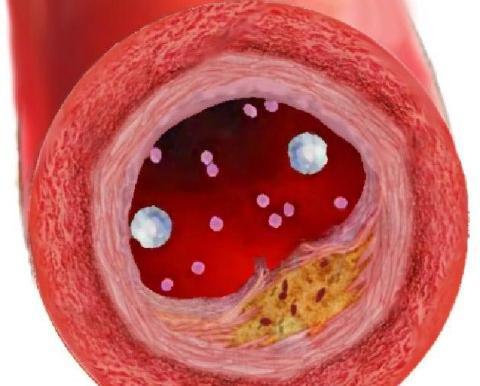 Scoperta la proteina causa del colesterolo alto
