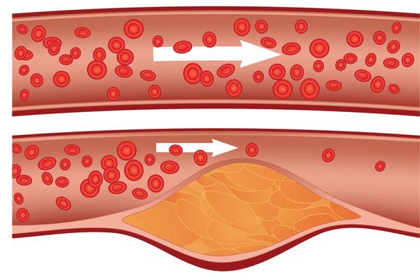 colesterolo-sintomi