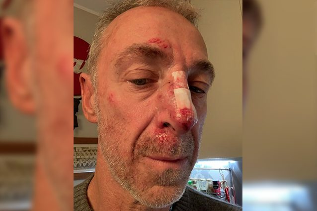 Linus naso rotto