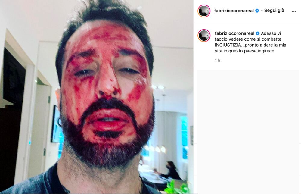 corona insanguinato post instagram-2