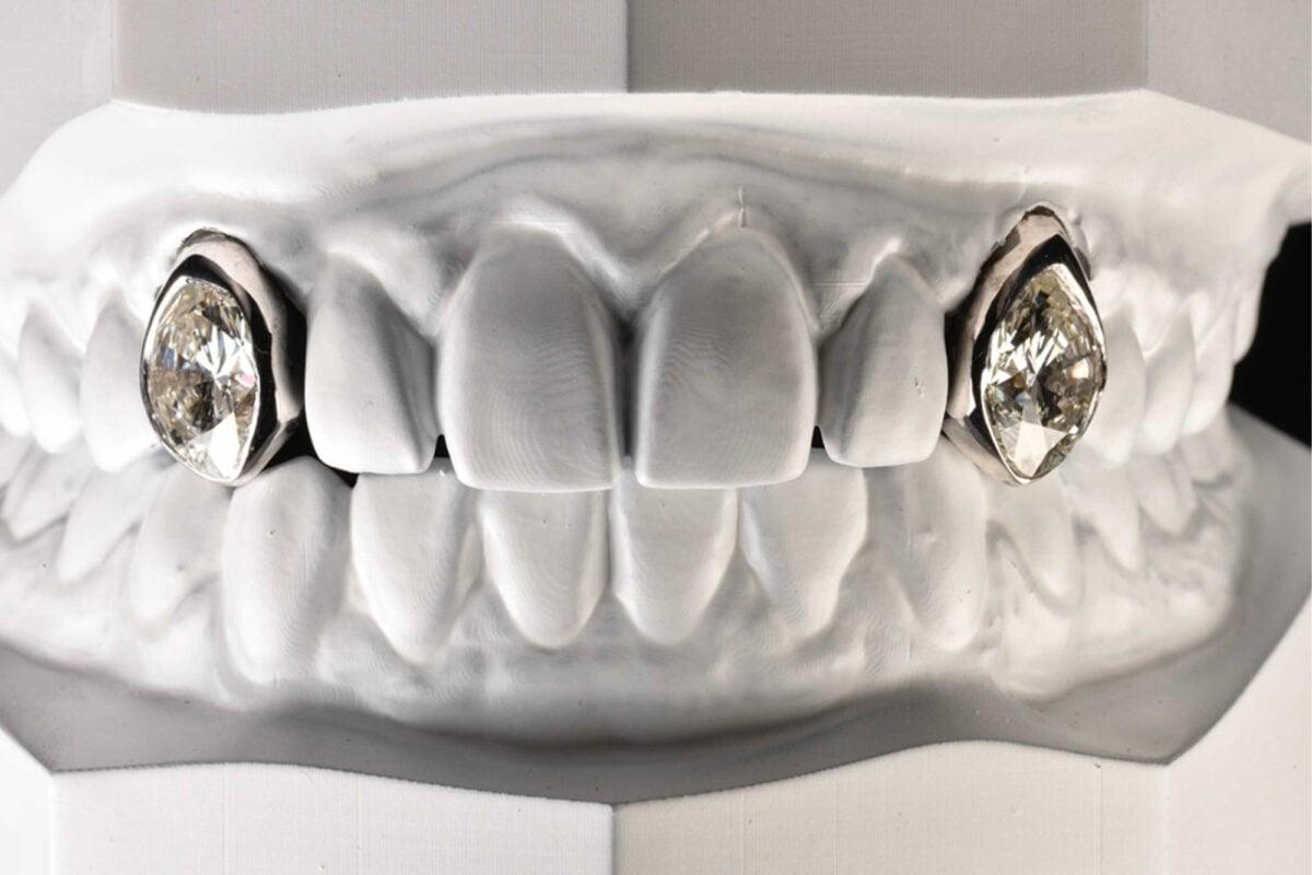 post-malone-teeth-001